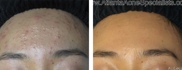 Acne Treatment Photos
