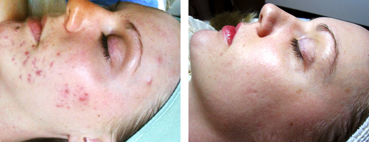 face_acne_002_before_after