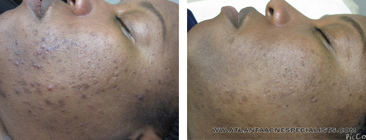 Results Acne Services