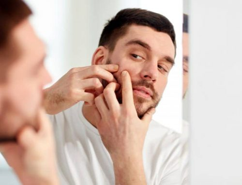 10 Acne Myths Debunked